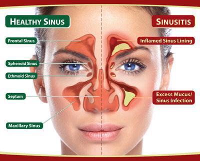 Holistic Sinus and Nasal Treatment